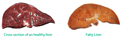 steroid induced liver failure