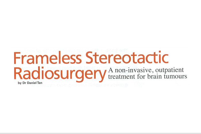 aaro-Frameless Stereotactic Radiosurgery