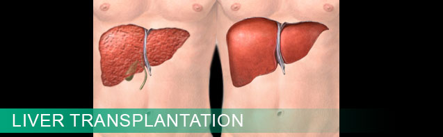 liver transplant Clinical Services