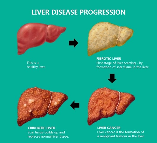 Liver Disease Progression