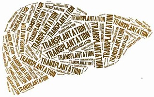 What is a liver transplant